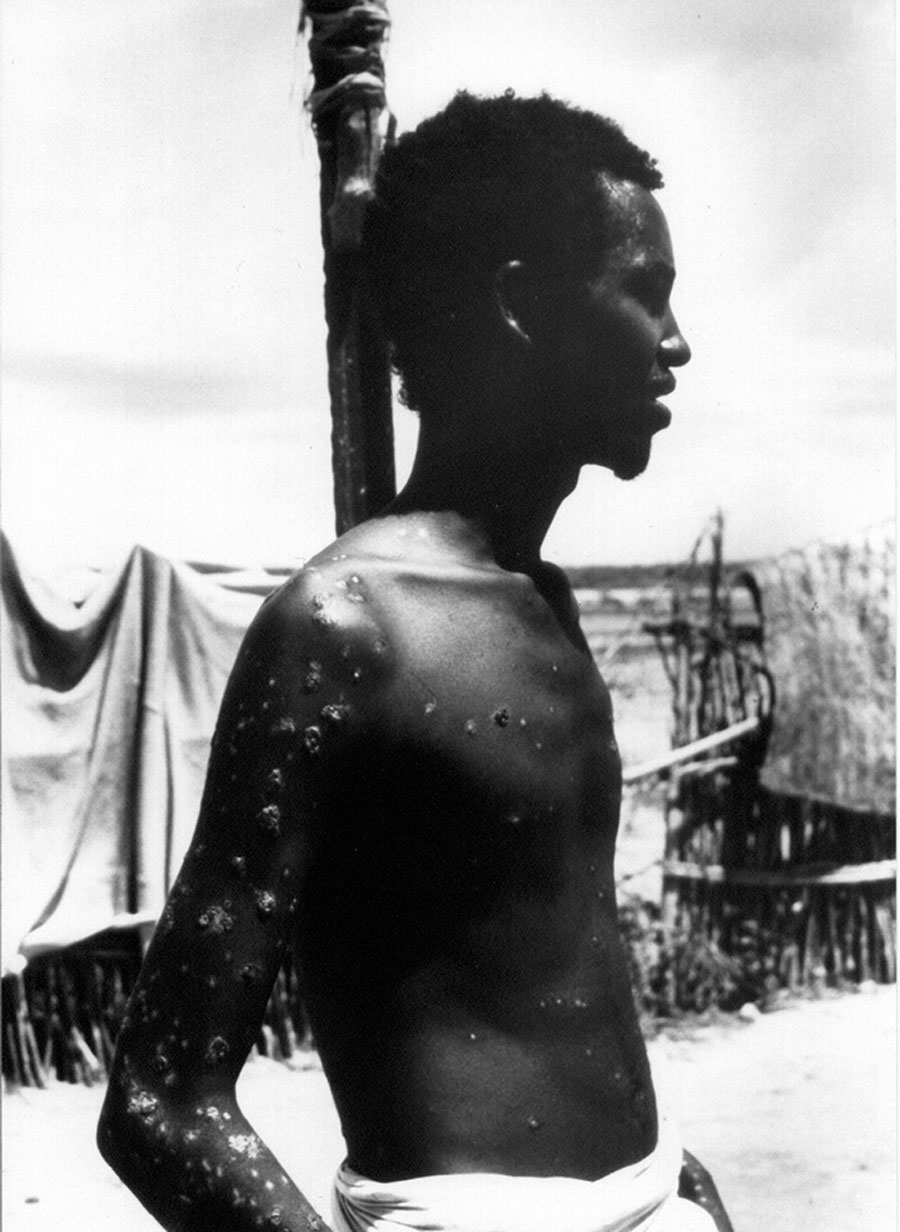 23-year-old Ali Maow Maalin of Merka town, Somalia, the last recorded case of the smallpox disease, in 1977. Credit: WHO /John F. Wickett